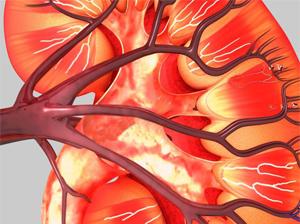 急性腎障害で糖尿病患者の低血糖リスクが27%上昇